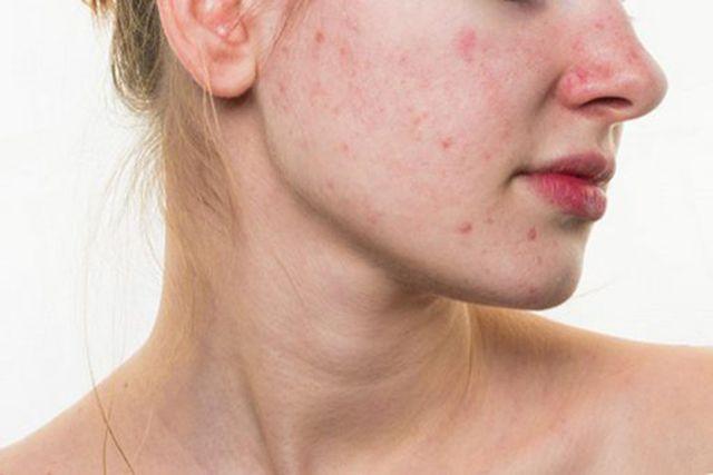 Tác hại của thức khuya đối với da mặt như thế nào - ảnh 2