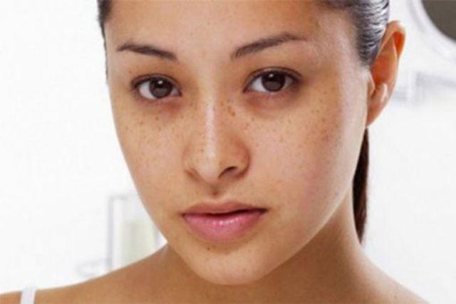 Tác hại của thức khuya đối với da mặt như thế nào - ảnh 3